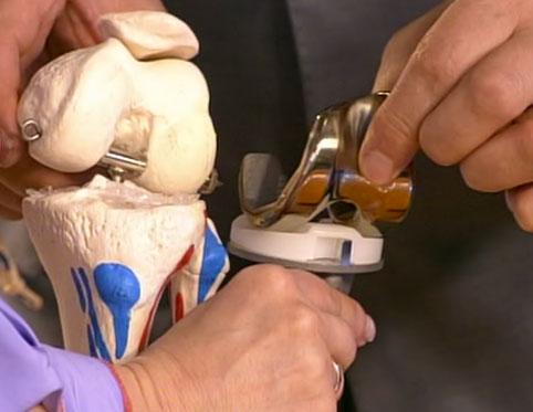 замена коленного сустава в г. красноярск