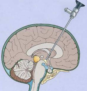 гидроцефалия головного мозга лечение в Израиле