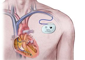 Имплантация деффибрилятора-кардиовертера в Израиле