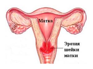 Лечение эрозии шейки матки в Израиле
