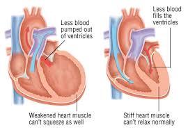 Лечение сердечной недостаточности в Израиле
