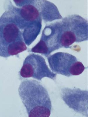 Лечение гемобластозов в Израиле