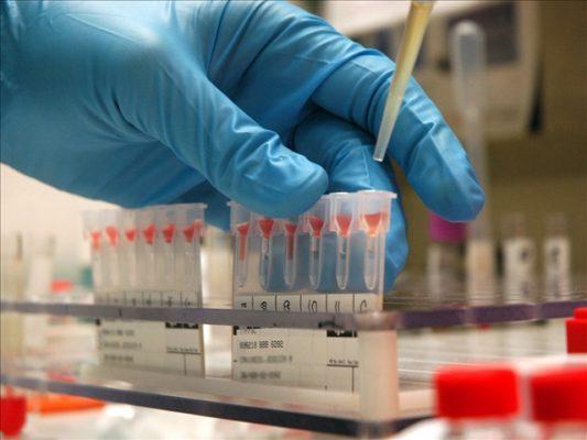 Лечение гемофилии А в Израиле