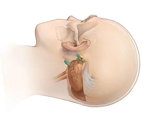 Микроваскулярная декомпрессия тройничного нерва в Израиле