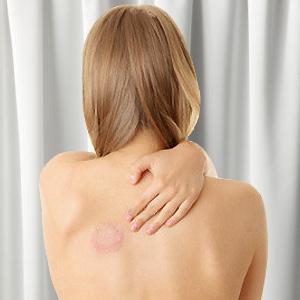 Лечение микоза кожи в Израиле