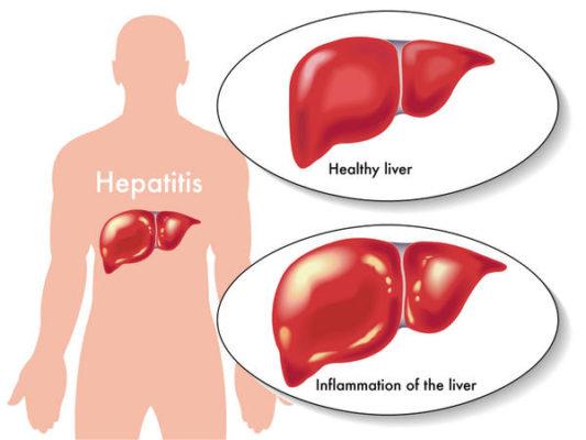 Лечение токсического гепатита в Израиле