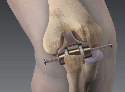 Эндопротезирование локтевого сустава в Израиле