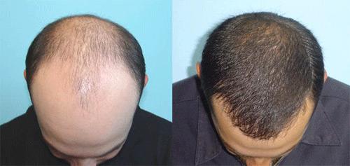 Пересадка волос в Израиле