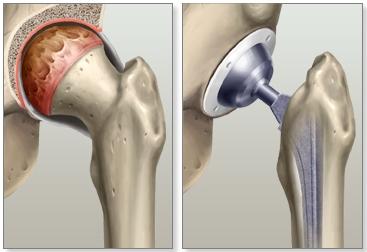 Операция тазобедренного сустава стоимость боль сустава локтя