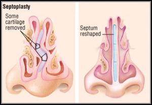 Восстановление носового дыхания в Израиле