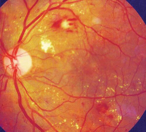 Что такое ретинопатия при диабете