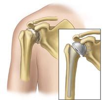 Эндопротезирование плечевого сустава в Израиле