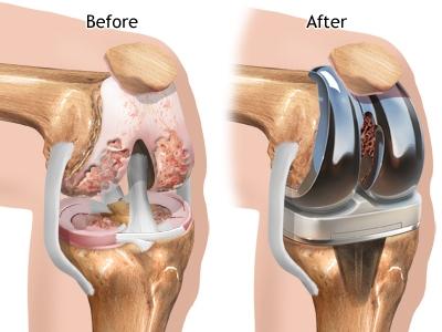 Отзывы операция артроскопия коленного сустава воспаление суставов пальцах рук
