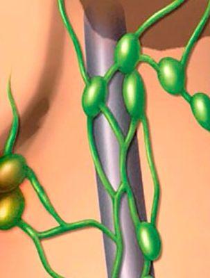 Удаление лимфатических узлов при раке яичек в Израиле