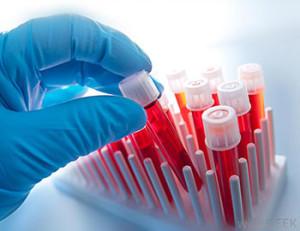 Лечение крови в Израиле