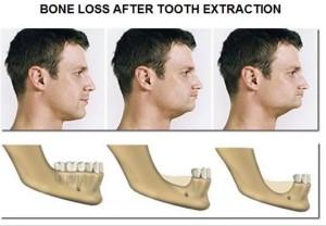 Лечение атрофии костной ткани в Израиле