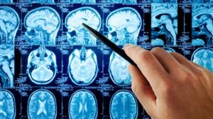 Операции на мозге в Израиле