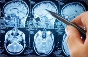 Среди распространенных заболеваний и расстройств головного мозга неврологами выделяется менингит, болезнь Альцгеймера, эпилепсия, опухоли головного мозга злокачественного либо доброкачественного характера. В отдельную группу можно включить патологические состояния, представляющие собой последствия развития атеросклероза сосудов головного мозга, примером – инсульт. Помимо этого, специальной медицинской помощи требует сотрясение головного мозга, черепно-мозговые травмы и другие повреждения данной анатомической зоны. Компания NewMed Center располагает ресурсами для организации эффективного лечения головного мозга в Израиле. Наши координаторы помогут реализовать лечебно-диагностическую программу любого направления. Узнать больше…   Инновационные методы обследования головного мозга в Израиле  Первые пункты консервативной либо инвазивной программы лечения головного мозга в клиниках Израиля – диагностика. В цену обследования включаются проверки с применением высокотехнологичного оборудования и привлечением ведущих специалистов. Диагностика может предусматривать следующие процедуры:   •МРТ с контрастом Высококачественная визуализация анатомических структур головного мозга с использованием раствора гадолиния, содержащего металлические элементы, на которые реагирует электромагнит.  •Стереотаксическая биопсия Минимально инвазивная методика забора образца пораженных тканей для проведения гистологического анализа. Процедура предусматривает точное введение инструмента через небольшое отверстие в черепе без повреждения жизненно важных структур мозга.  •КТ-ангиография Рентгенографическое исследование состояния сосудов (артерий, вен, лимфатических путей) с использованием йодсодержащего контрастного вещества, выявление нарушений кровоснабжения, аневризм, закупорок.   Новейшие методы лечения головного мозга в Израиле  Современная неврология и нейрохирургия позволяют успешно преодолеть патологические процессы, которые еще недавно считались неизлечимыми. Клиники-партнеры компании NewMed