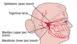 Лечение воспаления тройничного нерва в Израиле