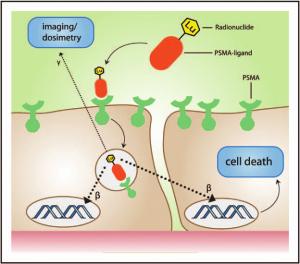 Инновационное лечение рака предстательной железы