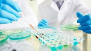 Лечение плоскоклеточного рака миндалин в Израиле